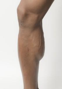ふくらはぎの肉離れの原因は筋肉の疲労やミネラル不足