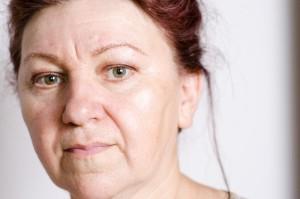 ゴルゴ線は眼精疲労、表情筋の衰え、肌弾力低下によりおこり老け顔に