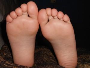 粉瘤(アテローム)は足の裏に出来る事もありタコやウオノメと間違えられる