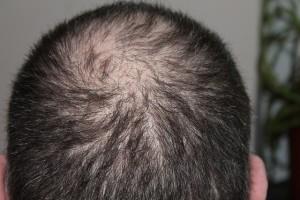 AGAは男性型脱毛症、生え際や頭頂部が薄くなること