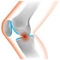 多くの人が悩まされている膝上の痛み!いったいどうすれば痛みが取れるのか??