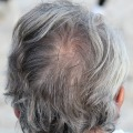 あ!10円ハゲ!円形脱毛症に気づいたらどうすればいい!?治療の目安は?髪の毛を失う可能性は?