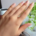 朝に指がむくむ理由は?指のむくみに隠された病気とは?