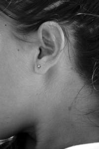 耳朶の痒みの原因