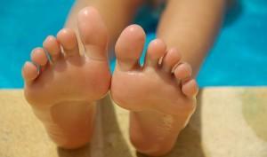水虫以外で足の裏がかゆい病気