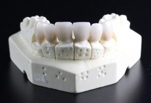 歯列矯正によって歯のかみ合わせを正しく