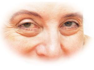 タバコ顔の特徴は不健康さにあります