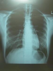肺に穴があく病気