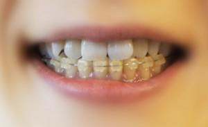 歯並びを治すには歯列矯正
