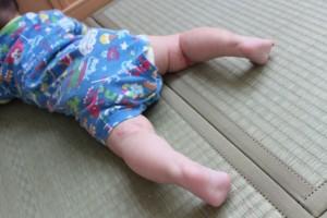 cda901d3d354b2a885f7ad3dc95cde52_s baby 赤ちゃん 足 湿疹 あせも