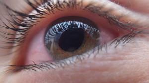 充血が酷いなど見た目にそれほど問題がなければ眼帯の必要はないでしょう