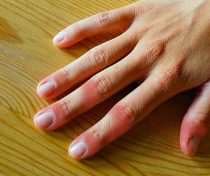 しもやけは冬に起こる肌トラブルの一つ