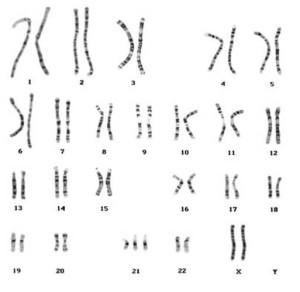 出典:Angel RISA「ダウン症の染色体」