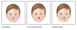 出典:Cleft Lip (The Royal Children's Hospital Melbourne)