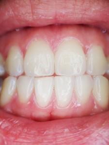 つわりで苦しくて歯磨きができない妊婦さんは、キシリトール配合のガムを活用しましょう。