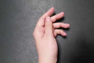 ばね指(弾発指)というのもあります
