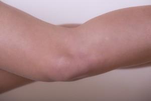 生まれつきではなく、後天的に足の長さが違うようになる病気もあります。