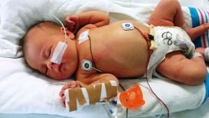 早産の場合「周産期水痘」が怖い