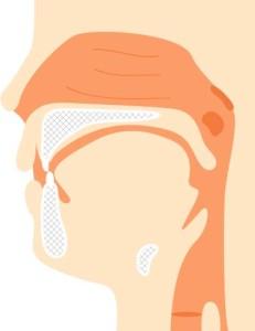 咽頭炎という喉の病気