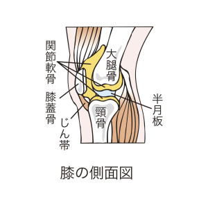 高齢者に多い大腿骨の骨折