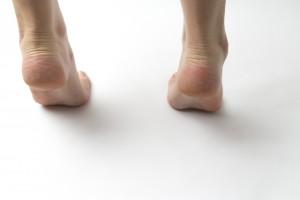 足指の変形